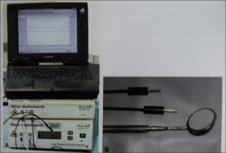 Pulse oximetry and laser doppler flowmetry for diagnosis of pulpal