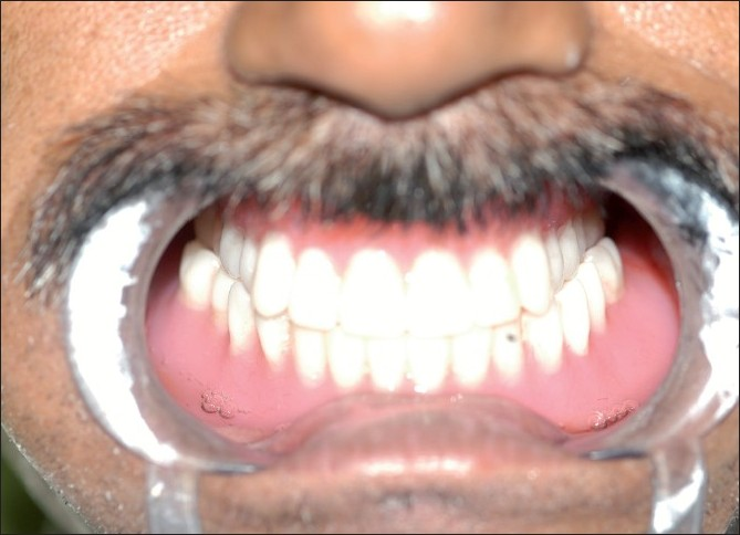 Figure 8: Denture inserted in the patient's mouth