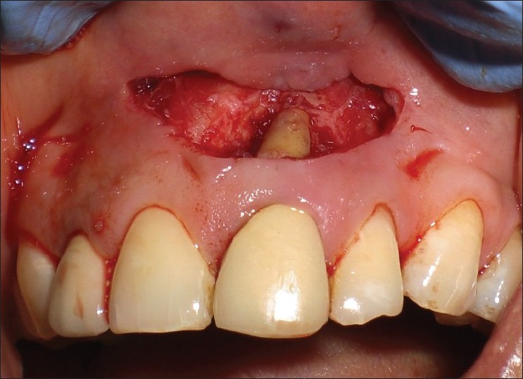 fractured tooth root canal