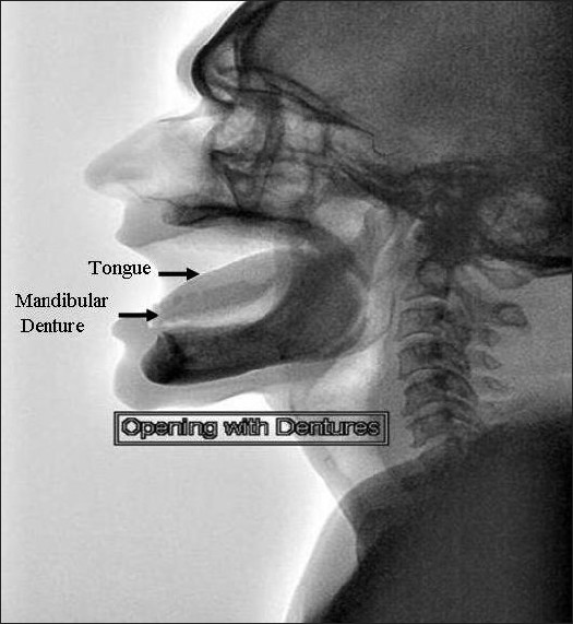 Figure 5: Mobility of mandibular denture could be assessed in interference free conditions