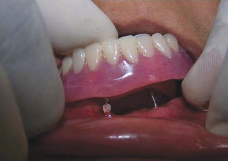 Figure 6: Insertion of the denture into the patient's mouth