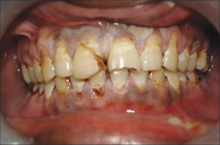 Figure 1: Sub gingival crown fracture