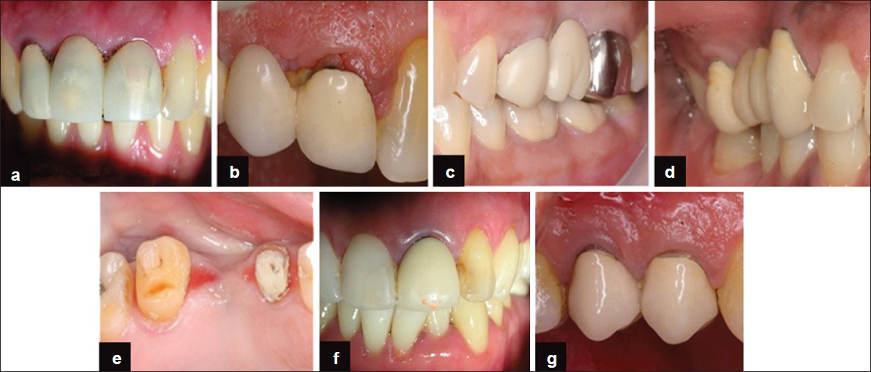 Periodontal Considerations Determining The Design And Location Of