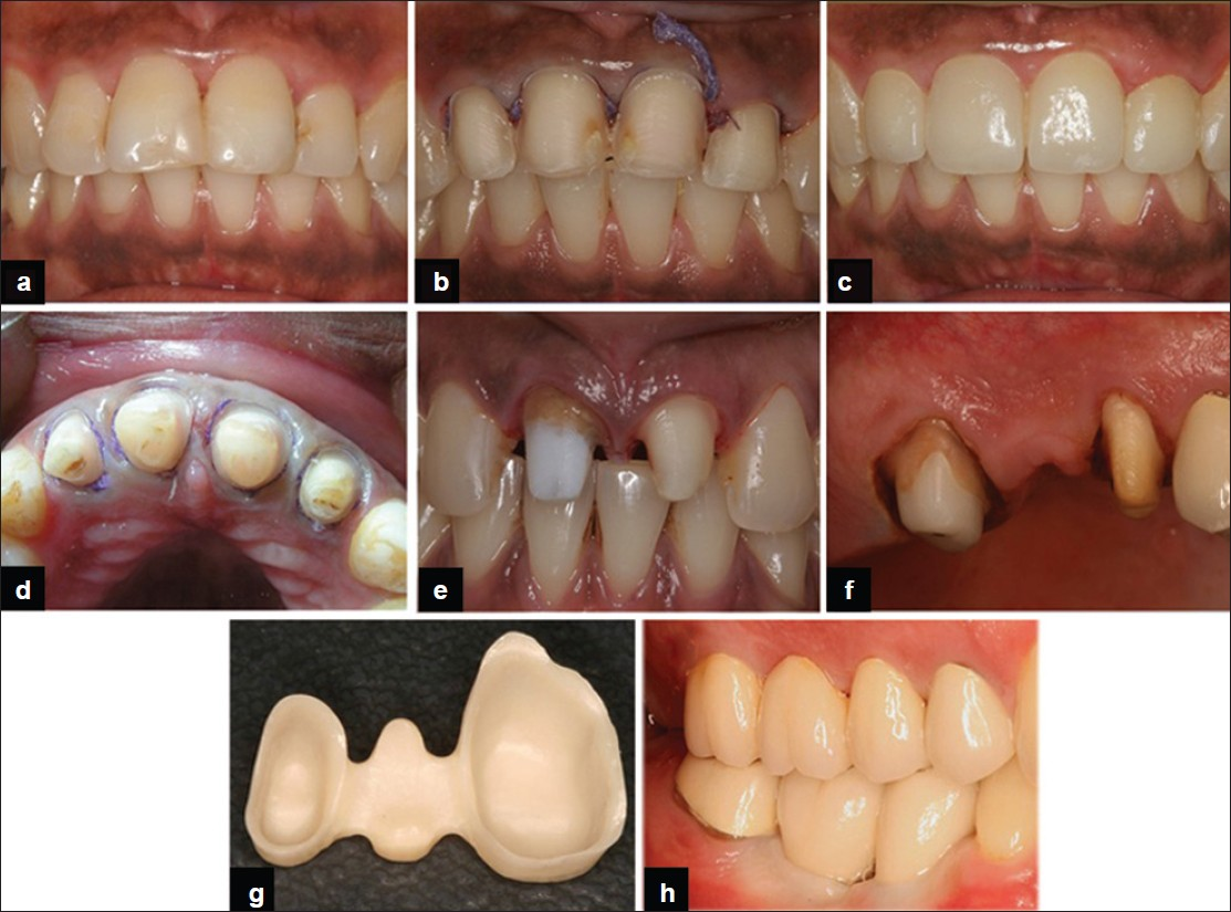 Periodontal considerations determining the design and location of ...