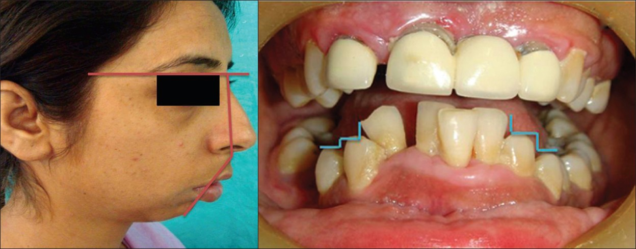 Figure 1: a: Pre-operative photograph showing convex profile , incompetent lips, and retrognathia with deep mento-labial sulcus