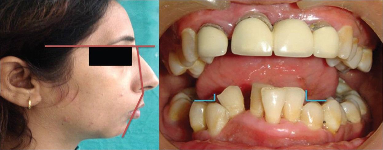 Figure 3: a: Post-operative profile photograph