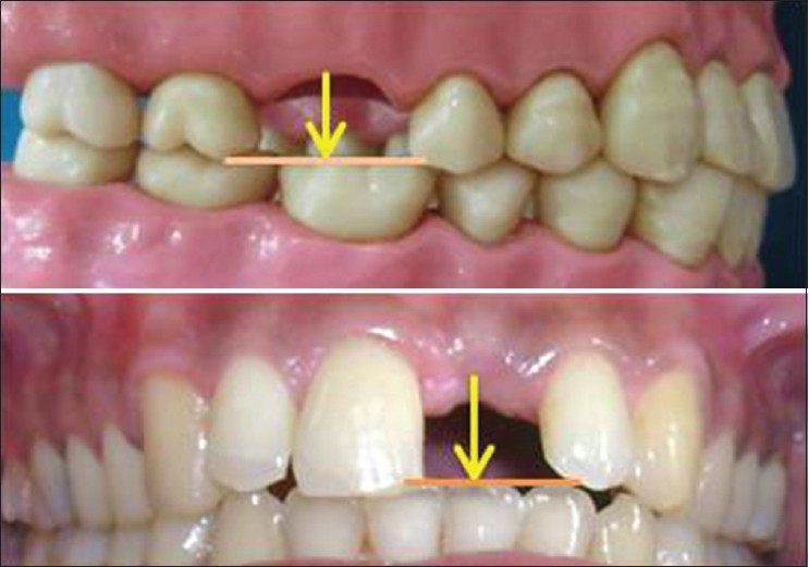 Implant pdf dental prosthetics