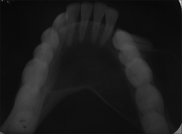Figure 2: Intra-oral periapical showed radiolucency with expansion with respect to the lingual and buccal cortical plates