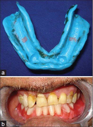 Figure 4: (a) Definite functional impression. (b) Complete wax-up trial