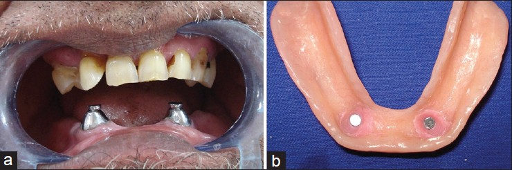 Figure 5: (a) Magnets are placed on top of keeper. (b) Magnets are fixed in lower denture with the help of autopolymerizing resin in patient's mouth