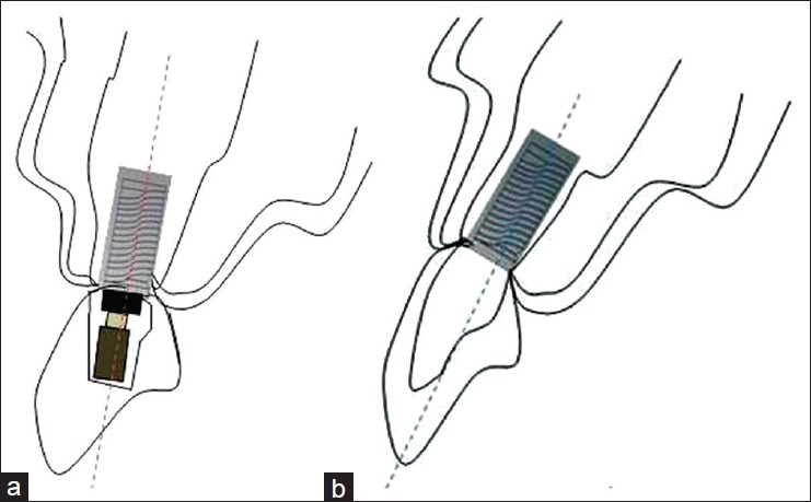 Figure 1: (a) Screw-retained restorations (b) Cement-retained restorations