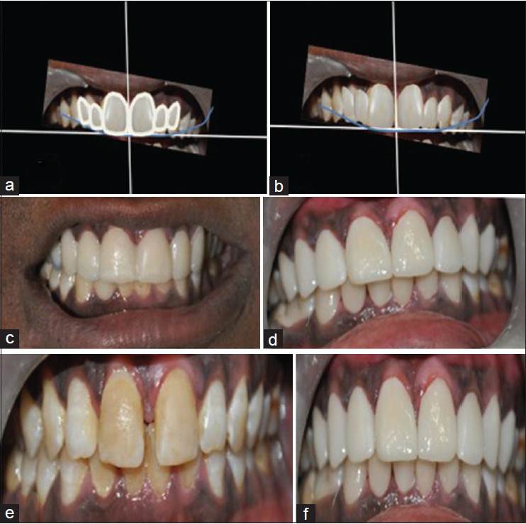Evaluation Of Function And Esthetics For Creating A Beautiful Smile In Dental Practice Using Digital Smile Designing