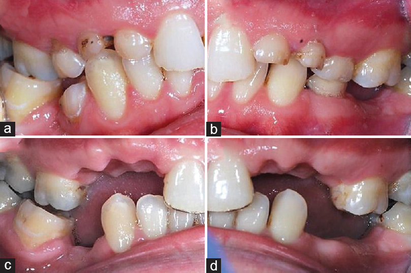 Figure 5: (a and b) Preoperative lateral view, showing inadequate restorative space on lateral incisors and canines area. (c and d) After 6 months, adequate restorative spaces was created due to Dahl's principle and minimal bone remodeling after deciduous teeth were extracted