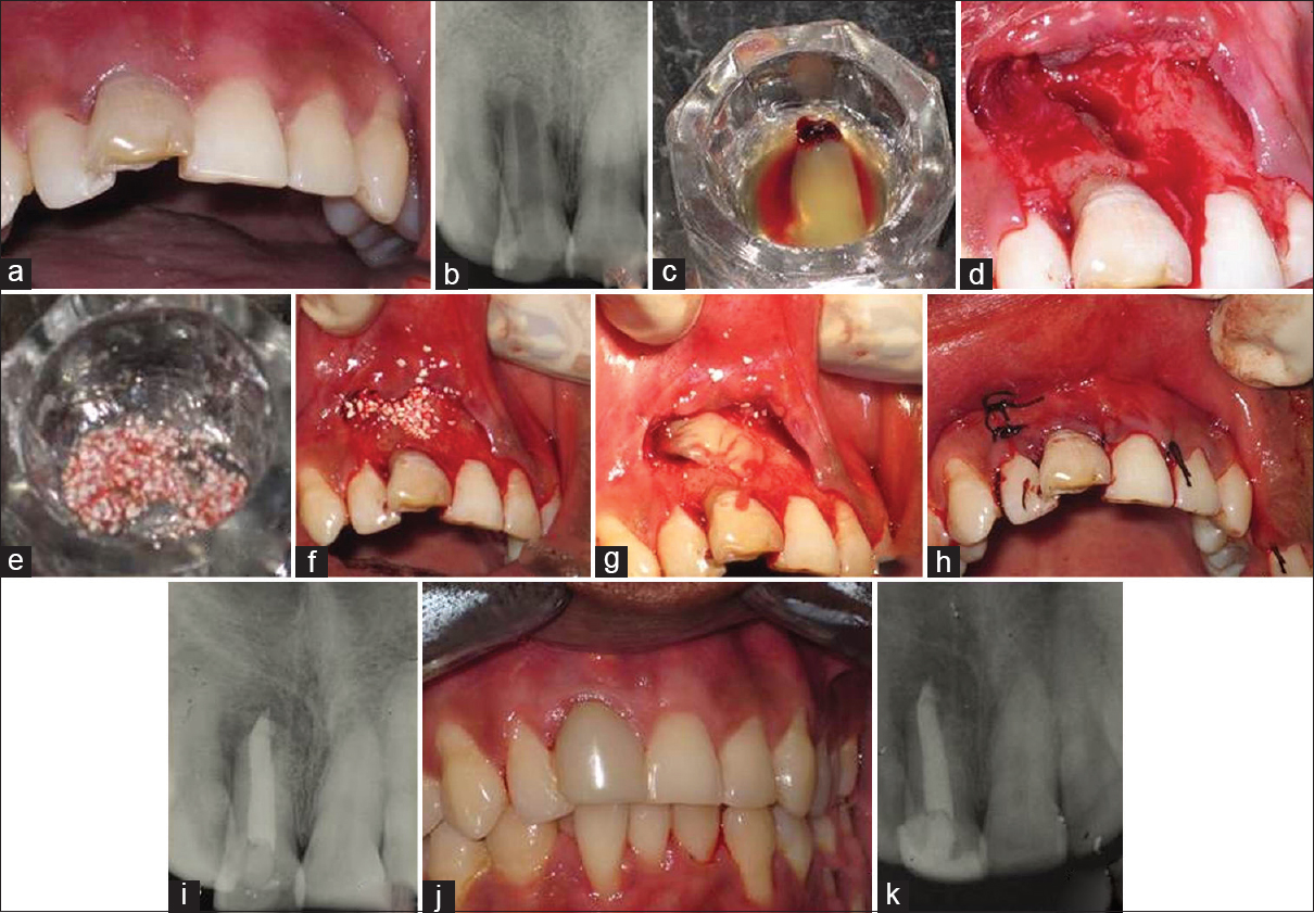 Management of dehiscence and fenestration alveolar defects