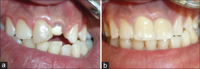 Figure 1: (a) Intraoral film of the patient before treatment. (b) Intraoral film of the patient at 18 months recall visit