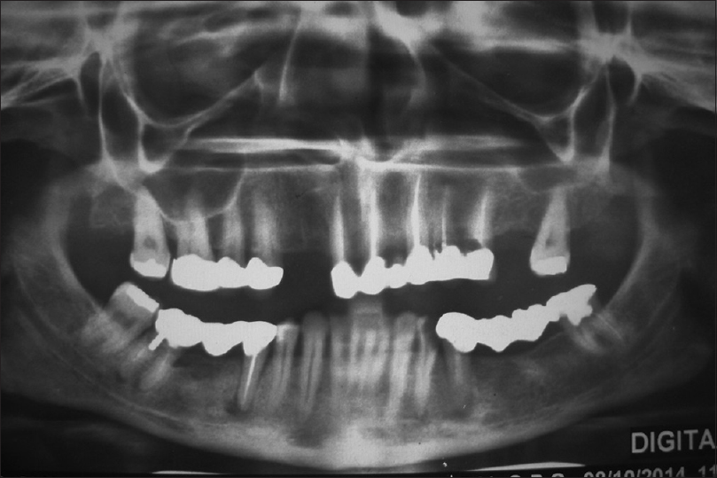 Figure 2: Orthopantomogram made after previous treatment. Note inadequate endodontic treatment, uneven occlusal plane, and secondary caries of abutments