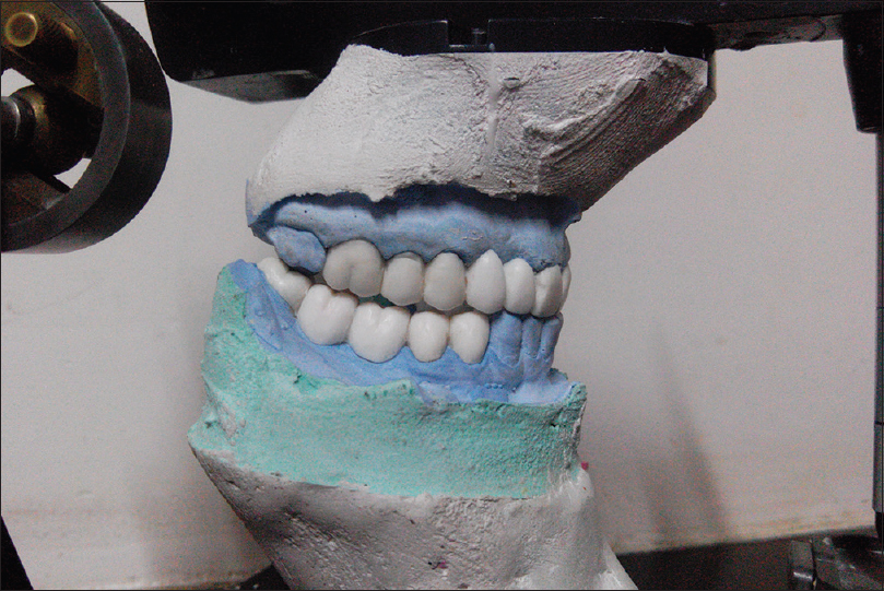 Figure 4: Diagnostic wax-up. Disclusion of posterior teeth by anterior during protrusion can be seen