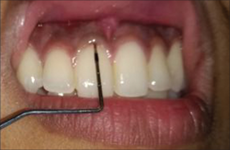 Gingival Biotype And Its Importance In Restorative Dentistry A
