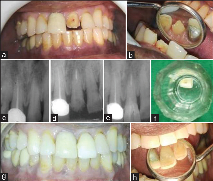 Conservative Approach For Natural Restoration Of Fractured Anterior