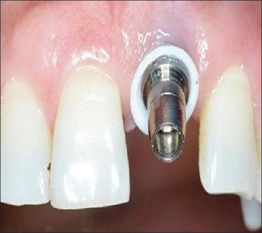 Figure 2: Application of G-Cuff™ at 21 implant site for peri-implant soft tissue retraction. implant fixture, G-Cuff™, and abutment form a single unit