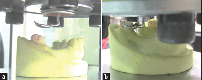 Figure 5: (a and b) Assembly on the simulator with Co-Cr clasp
