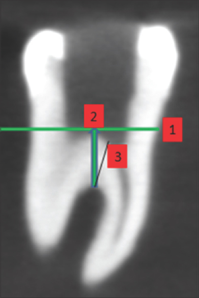 Figure 5: Measurement of Dentin thickness