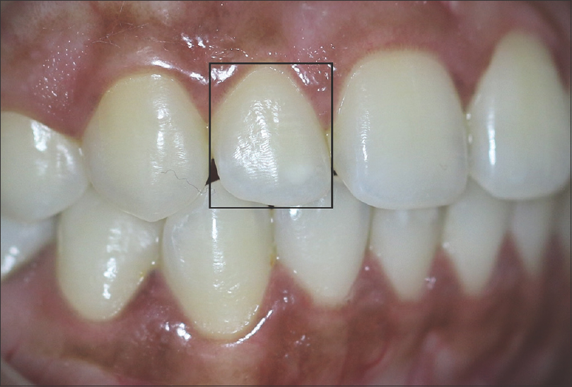 Figure 9: Perpendicular view to lateral incisor (right)