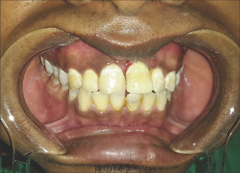 Figure 7: Crown buildup with composite after 4 weeks
