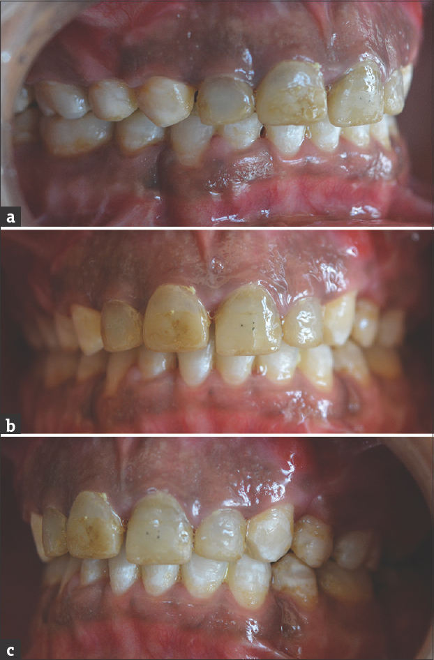 Figure 3: (a-c) Composite build-up done following surgical intervention