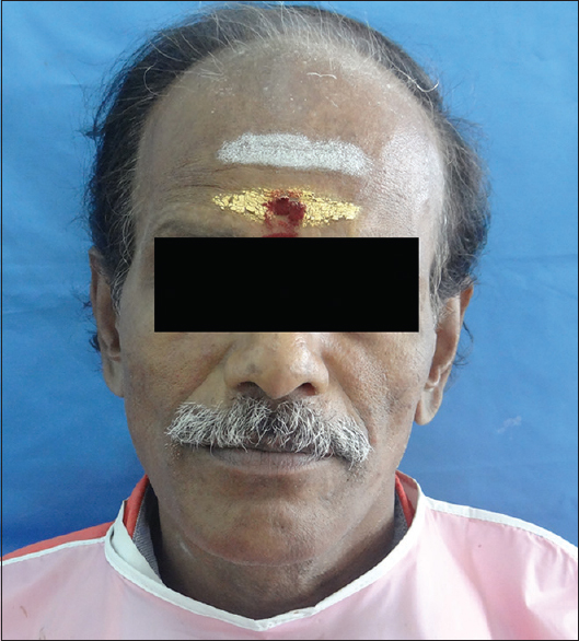 Figure 5: Extraoral view of finished prosthesis before incorporation of cheek plumper