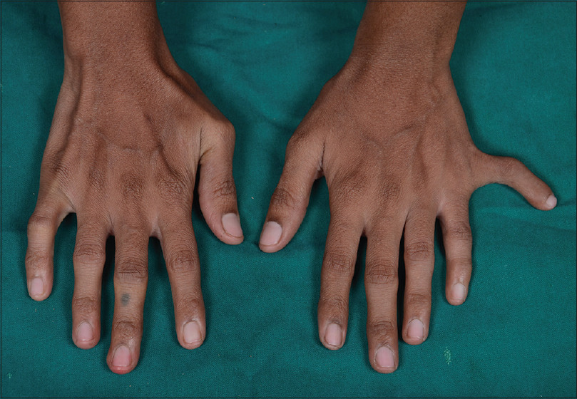 Figure 3: Hexadactyly on ulnar side of the left hand