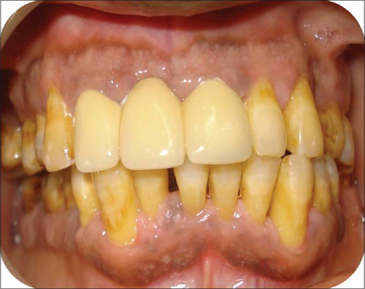 Figure 4: Posttreatment follow-up of 2 years with restoration of normal periodontal health