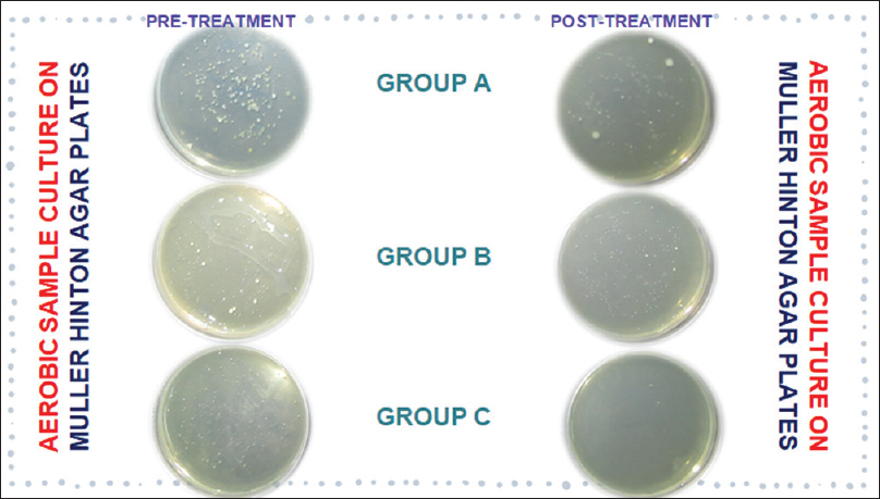 Figure 4: Significant reduction in aerobic colony-forming units posttreatment