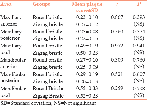 Table 2: Comparison of the mean plaque scores using independent <i>t</i>-test, after 2 min brushing between groups using round bristle and zigzag bristle brushes