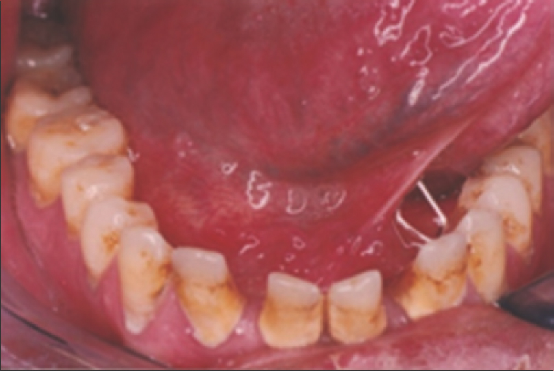 Figure 5: Large calculus builds on the mandibular anterior teeth