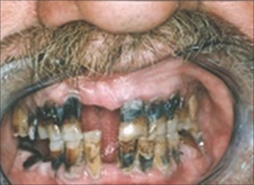 Figure 6: Severe deterioration of oral health in worker spent about 15 year's employment in the production line