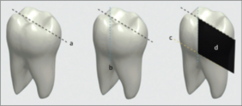 Figure 1: Tooth fragments obtained for scanning electron microscope analysis. (a) Longitudinal section on the mesiodistal plane. (b) Longitudinal section on the buccolingual plane. (c) Section on the cervical region of the buccal surface, perpendicular to the long axis of the tooth. (d) Fragment obtained from the tooth