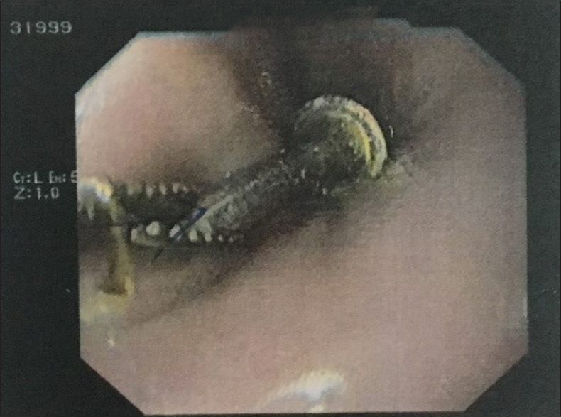 Figure 3: Sharp tip of the hex driver was clamped with the clamping device attached to the end of the endoscopic instrument