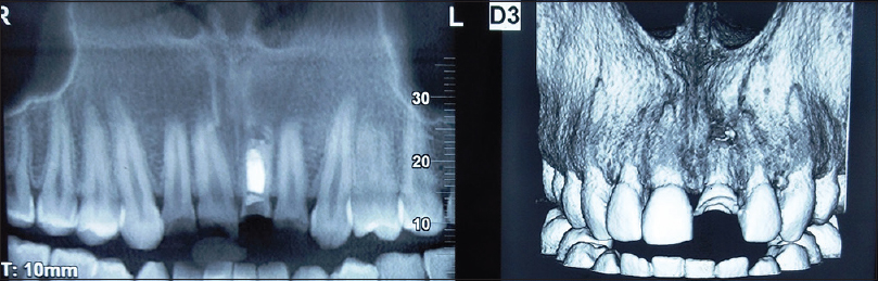 Figure 2: Radiographic view of the tooth