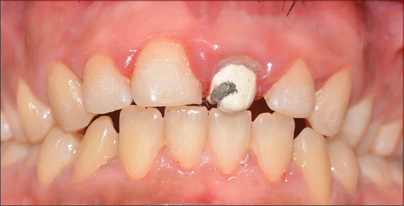 Figure 6: Post stabilization phase (2 mm of extrusion achieved and maintained prior to implant placement)