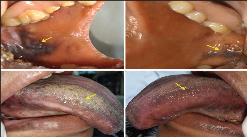 Figure 1: Grayish-black diffuse pigmentation with white striations seen on the buccal mucosa at the level of occlusal plane and lateral borders of the tongue