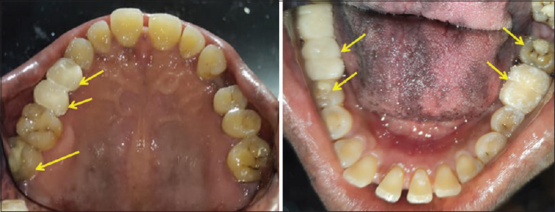 Figure 3: The cast metal crowns (all metal and porcelain-fused-to-metal crowns) were removed and heat-cured acrylic provisional crowns placed