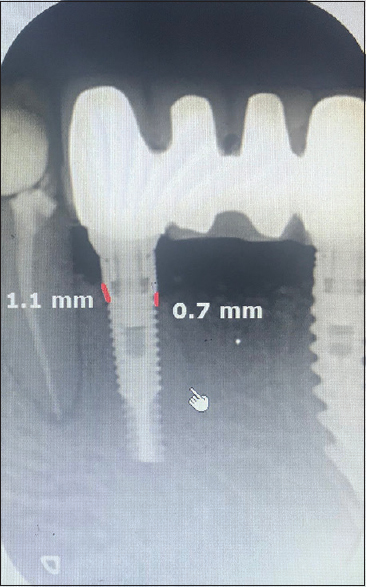 Figure 10: Postoperative radiograph (7 months)